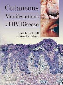 Cutaneous Manifestations Of Hiv Disease - Cockerell Clay J.